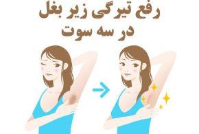 رفع تیرگی زیر بغل و درمان سیاهی زیر بغل در 3 سوت