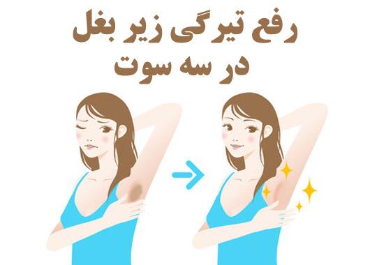 رفع تیرگی زیر بغل - رفع سیاهی زیر بغل - درمان تیرگی زیر بغل - درمان سیاهی زیر بغل